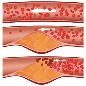 Почему возникают холестериновые бляшки