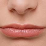Особенности лазерной эпиляции верхней губы