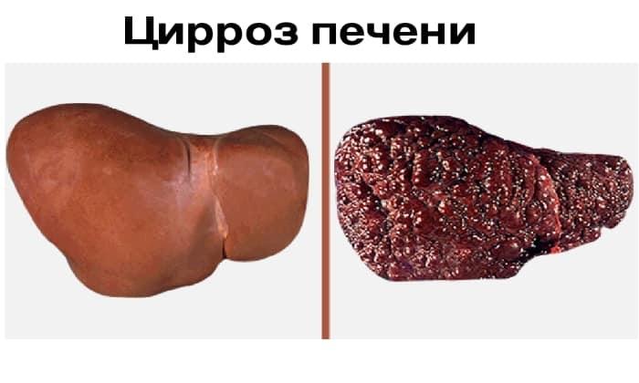 Лекарственное средство используется при циррозе печени