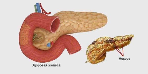 некроз тканей поджелудочной