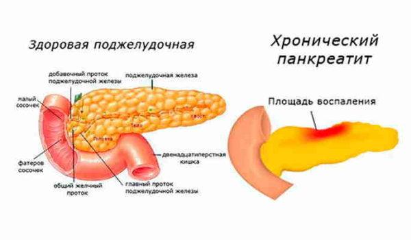 панкреатит поджелудочной