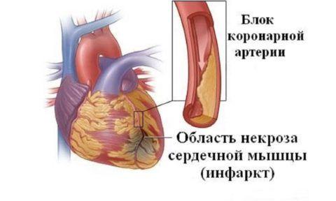 Инфаркт миокарда – частое осложнение гипертонии