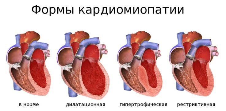 Чем кардиодистрофия отличается от кардиомиопатии