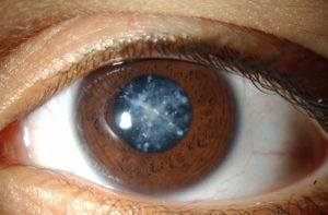 фото глаза с диабетической катарактой