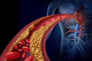 Воздействие холестерина на сердце