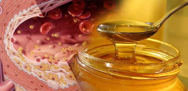 Мед и холестерин