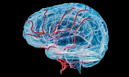 Людям с нарушениями кровообращения головного мозга нужно соблюдать осторожность