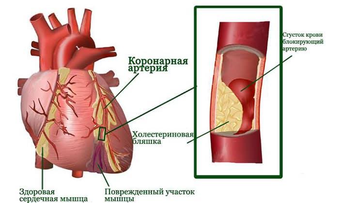 От лечения отказываются при перенесенном инфаркте миокарда