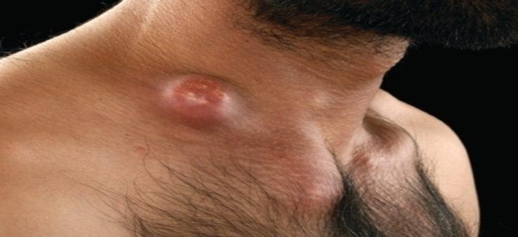 Лимфаденит - симптомы заболевания