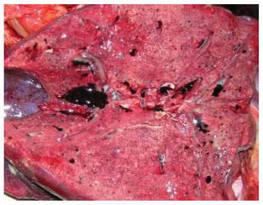 Гомеопатические средства при панкреатите