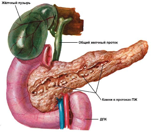 Панкреатические изменения в поджелудочной железе и ее протоках
