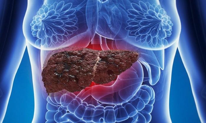 Также Мовоглекен не используют при тяжелых заболеваниях печени