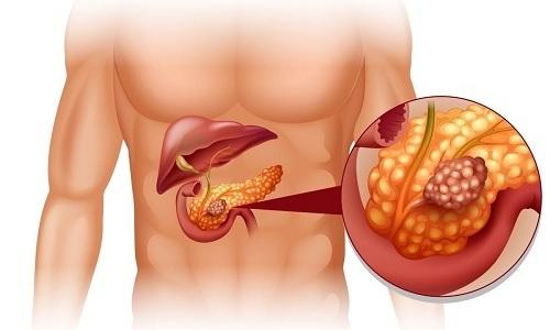 При лечении опухолей в поджелудочной железе возможно развитие рецидива