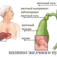Холестероз желчного пузыря
