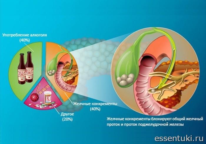Причины возникновения заболеваний поджелудочной железы