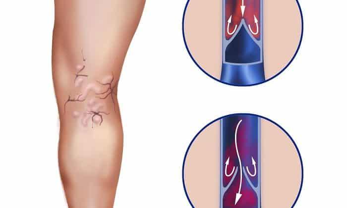 Варикоз глубоких вен - показание к применению Троксерутина