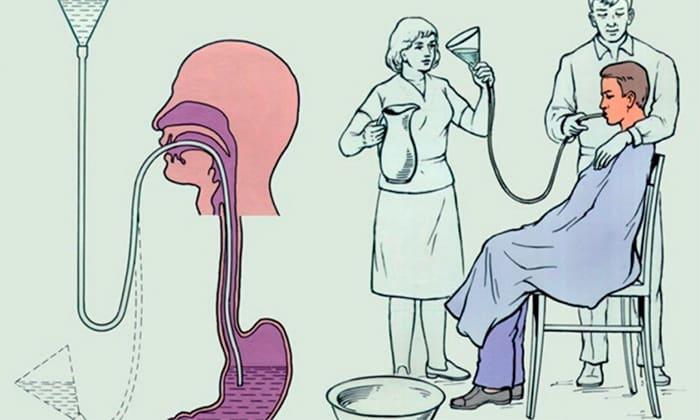В случае случайного приема дозы Диофлана, сильно превышающей суточную, следует срочно обратиться к врачу и сделать промывание желудка