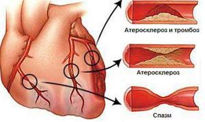 Как проявляется атеросклероз аорты