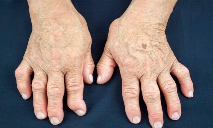 Вобэнзим назначают при ревматоидном артрите