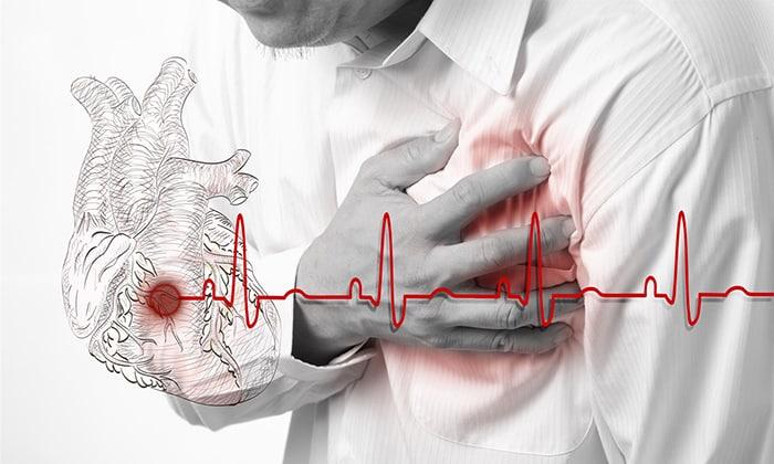 Острая фаза инфаркта миокарда является противопоказанием к приему препарата Метформин