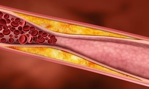 Действующее вещество в составе таблетки влияет на скорость биосинтеза холестерина