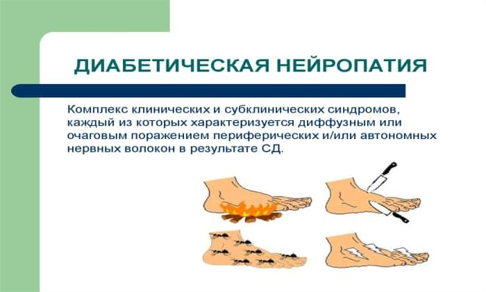 Препарат назначают при диабетической нейропатии