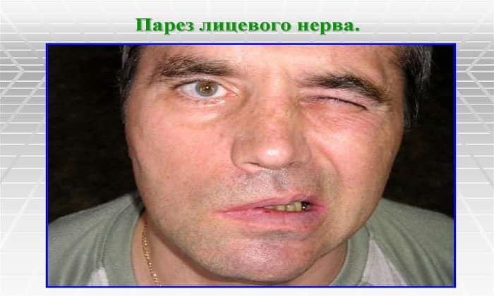 Препарат назначают при парезе лицевого нерва