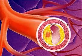 Соблюдение правил здорового образа жизни для предупреждения атеросклероза сосудов