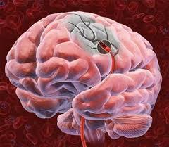 Изменение внутренней оболочеки артерии