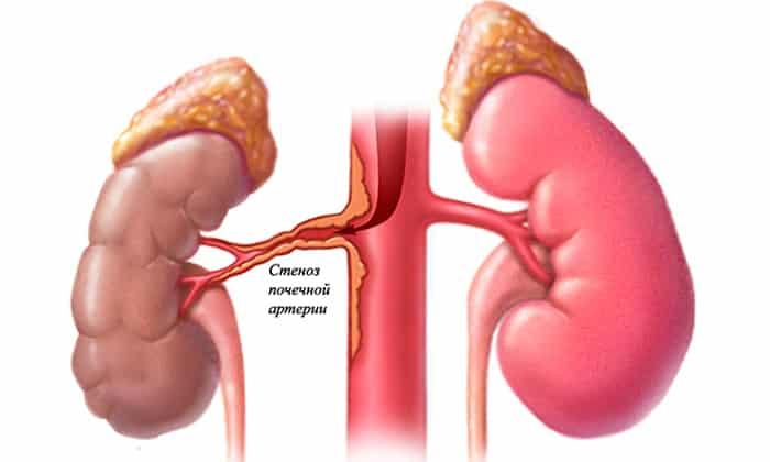 С осторожностью препарат назначается пациентам при стенозе двустороннего типа артерий, проходящих в почках