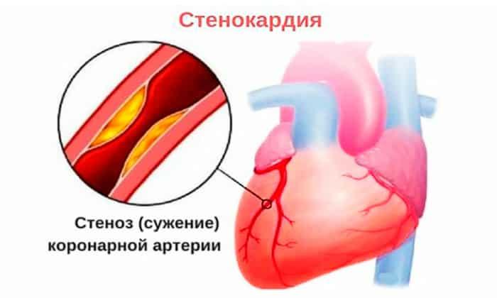 Вобэнзим используется для лечения стенокардии