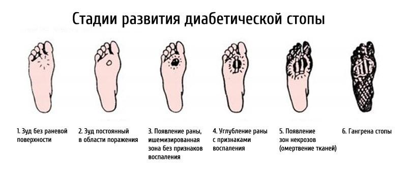 Лечение трофических язв на ногах при сахарном диабете