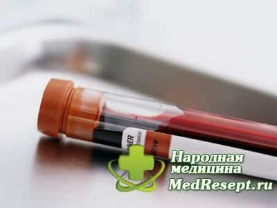 Высокий билирубин в крови причины