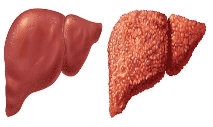 Прием лекарства запрещен при циррозе печени