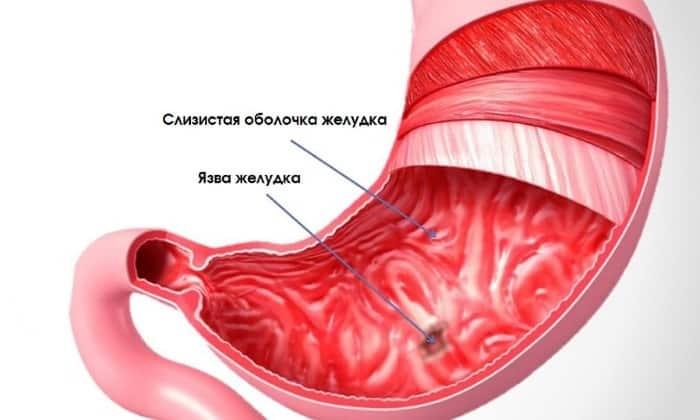 Прием лекарства запрещен при язвенной болезни желудка