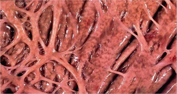 Какие изменения претерпевает сердце при миокардиодистрофии