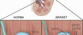 diabeticheskja-nefropatia