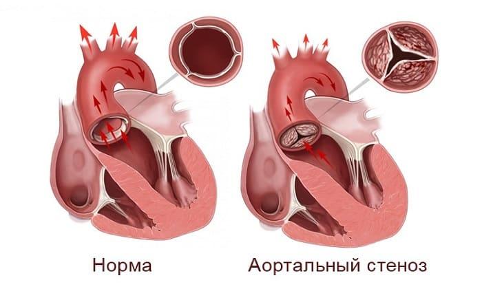 Ринсулин Р принимают с осторожностью при наличии у пациента стеноза коронарных и церебральных артерий