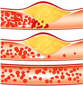 Питание при повышенном холестерине