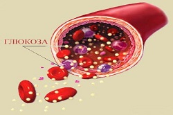 Гипергликемия при диабете