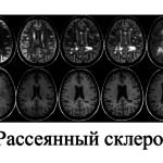 Лечение ОРВИ при рассеянном склерозе