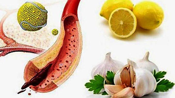 очищение сосудов от холестериновых бляшек