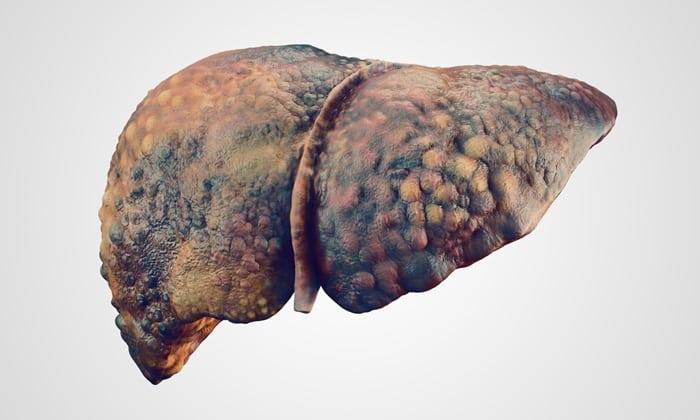 При нарушении функции печени отсутствуют ограничения приема витаминного комплекса на время лечения