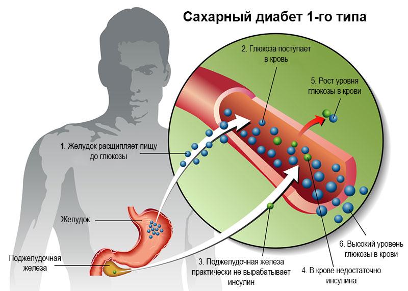 Сахарный диабет 1 типа лечение без инсулина