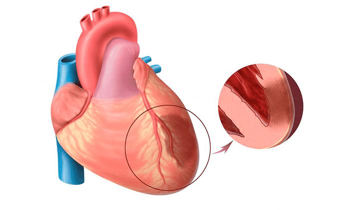 Актовегин противопоказан при патологии сердца