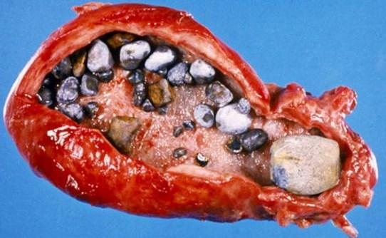 Кальцинаты в поджелудочной железе причины диагностика лечение