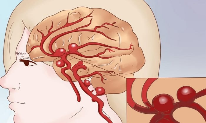 Абсолютным ограничением при использовании данного препарата является нарушение кровообращения в тканях головного мозга