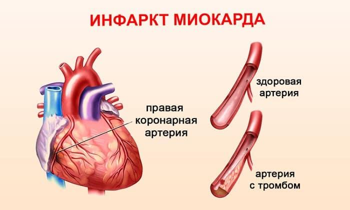 Абсолютным ограничением при использовании данного препарата является инфаркт миокарда в острой форме