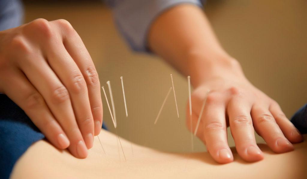 Искусство иглоукалывания доступно только профессионалам